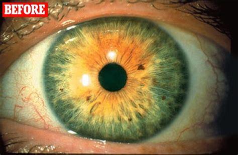 Did Latisse drug to make my eyelashes lusher turn my green ...