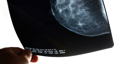4 Major Organizations Disagree On Mammogram Timing Shots