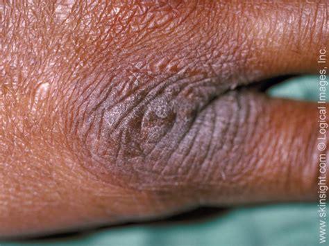 neurodermatitis national eczema association
