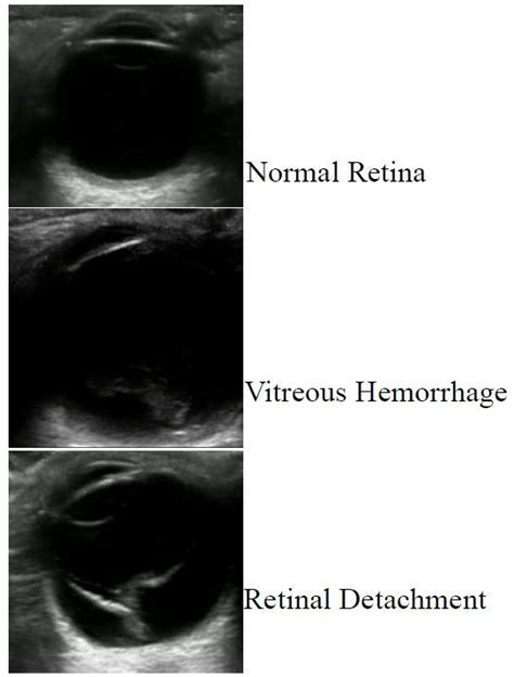 Club foot may affect one or both feet. Retrospective Review of Ocular Point-of-Care Ultrasound ...