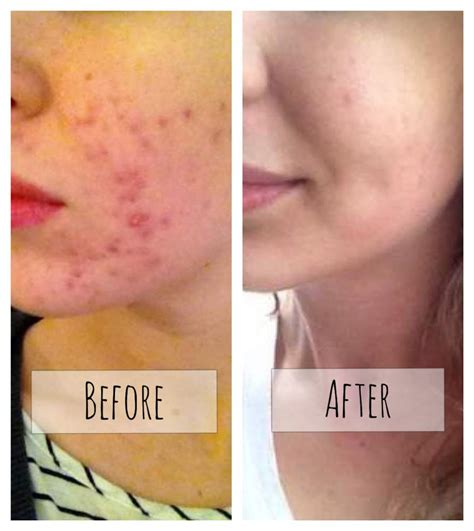 The Acneorg Regimen Logs  Regimen  Before & After Image