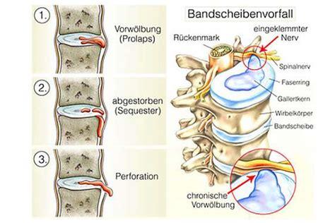 ProVital Hiltrup Rückentraining