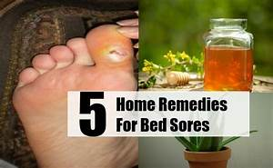 5 top home remedies for bed sores natural remedy for Bed sore relief