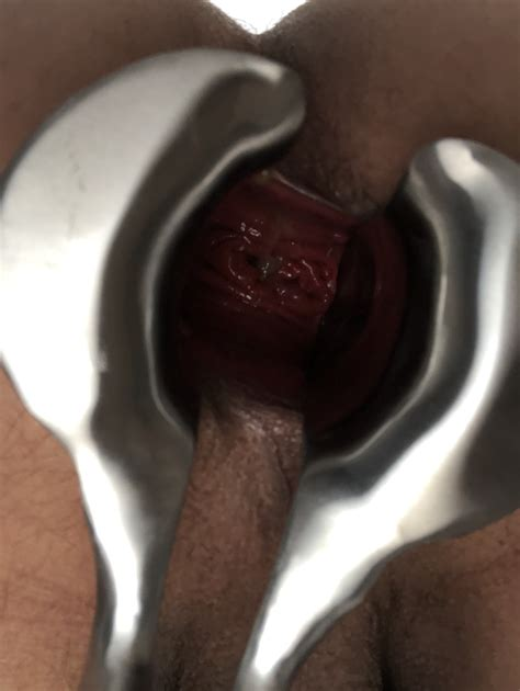 Extreme Anal Insertiongaping Page 2 Xnxx Adult Forum