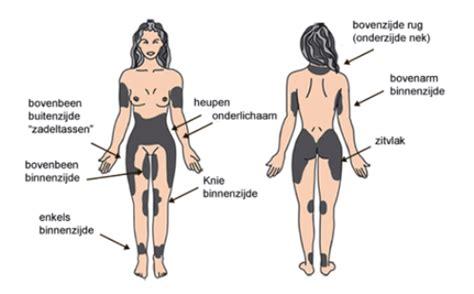 buikvet liposuctie