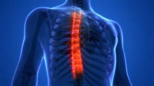 Реферат по теме лечение при остеохондрозе