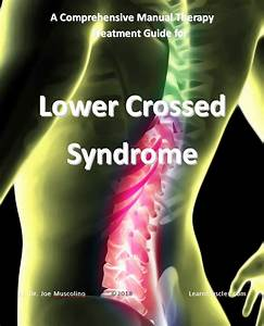 A Comprehensive Treatment Guide For Lower Crossed Syndrome