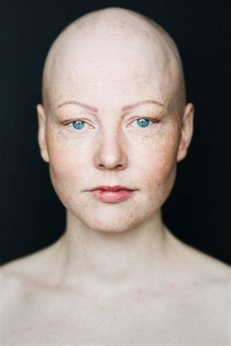 women  alopecia captured  beautiful pictures