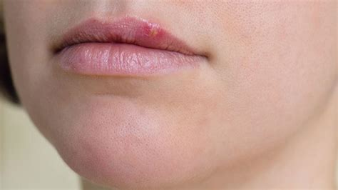 cold sore bothering   hydrogen peroxide  cold sores