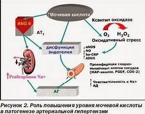 Эутирокс при псориазе