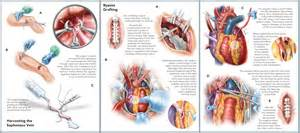 Coronary Artery Bypass Graft Coronary Artery Bypass Graft