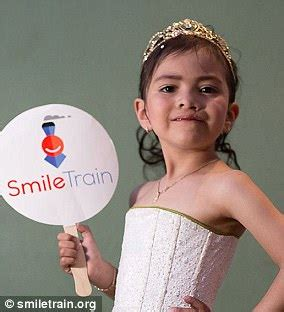 Cleft Lip Charity We Work Jenner 39 S Charity Project With Smile Revealed