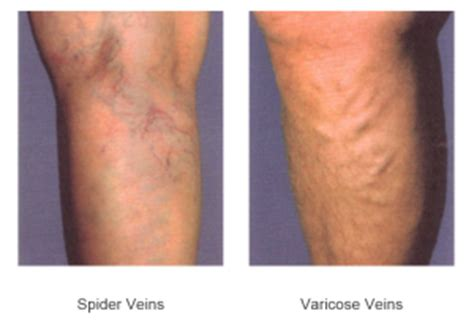 varicose vein treatment  michigan