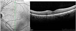 Online Atlas Of Ophthalmology  The University Of Iowa  Ophthalmology