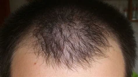 minoxidil results after 5 months before and after