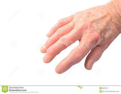 arthritis  hand stock image image  joint close