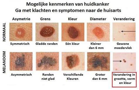 Melanoom informatiefolder van de dermatoloog