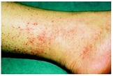 Rocky Mountain spotted fever - emergency room medical ...