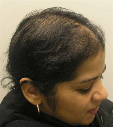 propecia shedding after 1 year finasteride in treatment of hair loss 2012