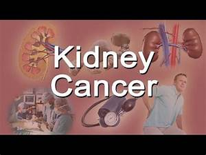 Kidney Cancer - YouTube