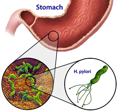 bactérie helicobacter pylori symptomes ulcer causing helicobacter bacteria induce stomach stem cell to grow leaders in pharmaceutical