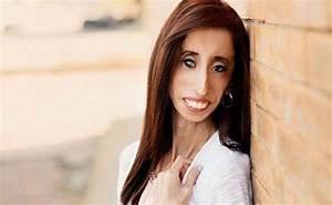 U quajt 'Femra më e shëmtuar në botë' por shiko se çfarë ...