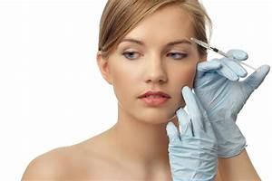 Acne Scars - asds