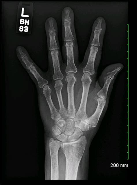 hand left ray archive oblique stepwards unremarkable radiological studies