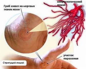 Скорлупа перепелиные яйца псориаз