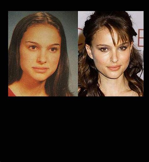 Natalie Portman Nose Job Before After Celebrity Jobs