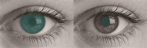 prosthetic contact lenses for light sensitivity biomed orion vision group