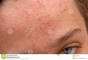 Acne Forehead Stock Images - Image: 24610044