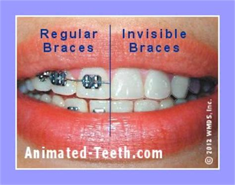 comparing costs invisalign express   kinds
