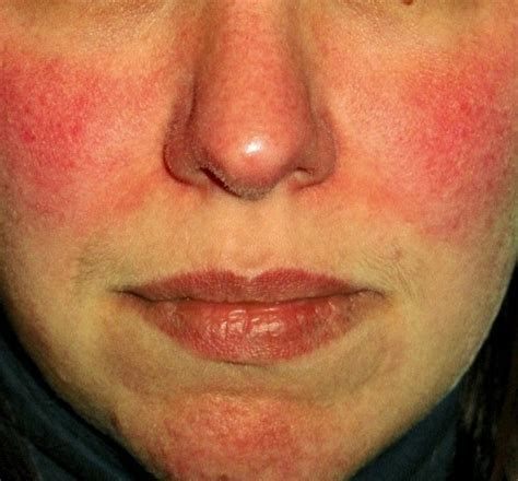 Rosacea Images Survey Shows Redness Takes Emotional Toll Rosacea Org