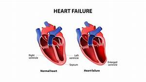 Congestive Heart Failure  Information On Diagnosis  Causes