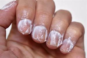 Dry Cuticles And Skin Around Nails
