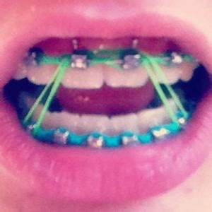 1000+ images about braces on Pinterest | Glow, Cedar park ...