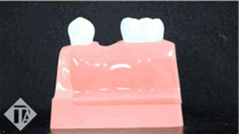 single tooth implants tewksbury dental implants chelmsford