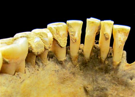tooth plaque  hold clues  ancient life