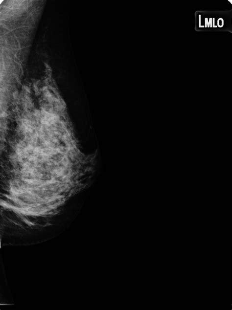 Mediolateral oblique view: tumor   Image   Radiopaedia.org