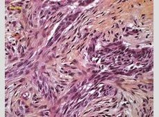 basal cell carcinoma Humpathcom Human pathology