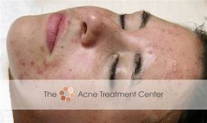 Before/After Patient Photos | Hyperpigmentation, Inflamed ...