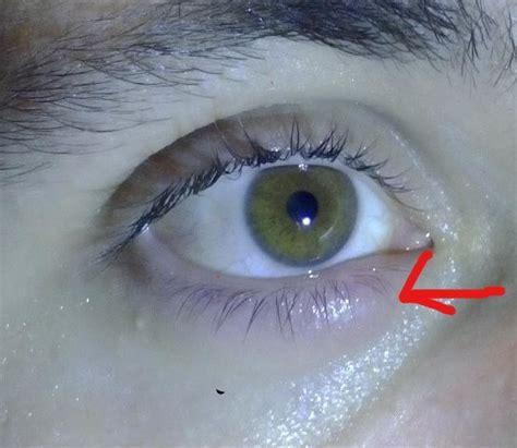 bouton al interieur de la paupiere point blanc al interieur de la paupiere 28 images orgelet ou chalazion ou acn 233 psoriasis