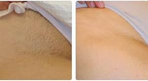 Laser Hair Removal Bikini Area With Cutera Xeo TruPulse