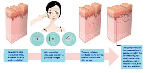 Dermaroller Skin Needling