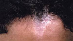 Lichen Sclerosus: Symptoms, Causes, and Treatment