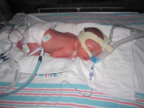 Respiratory Distress Syndrome In Newborns