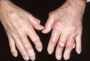 understanding gouty arthritis attacks centre  healthy
