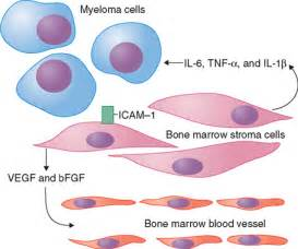 Multiple Myeloma  Multiple Myeloma Multiple Myeloma/Other Plasma Cell Neoplasms