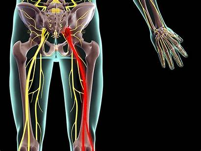 Sciatica Pain Exercises Ease Stretches Silversneakers Nerve